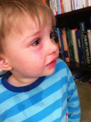 My poor little man! :(